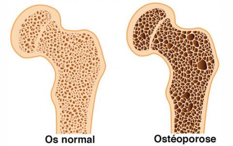 Limiter les risques d'ostéoporose en 10 astuces